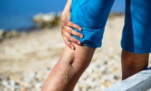 műtét utáni harisnya visszerek kenőcs a visszeres lábak fájdalmára