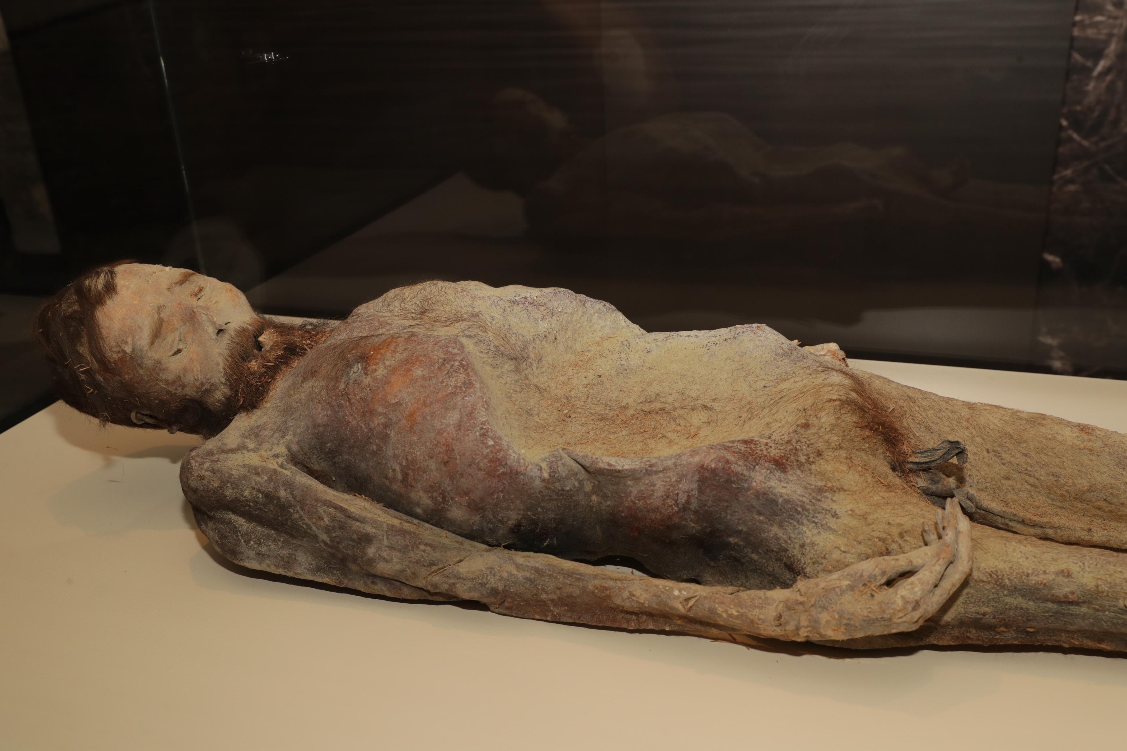 visszér múmia
