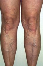életmód visszér műtét után a visszerek megelőzése a lábakon testmozgás