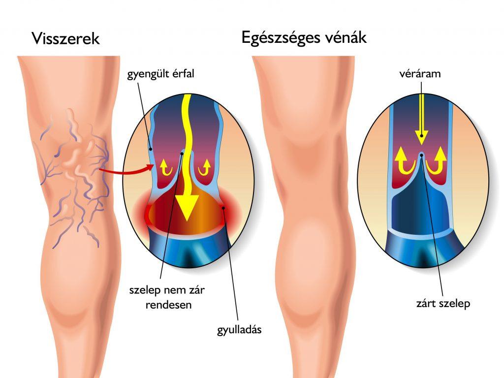 trombózis visszér különbség