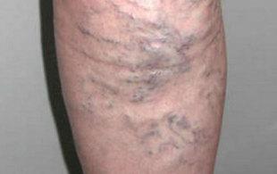 kötőszöveti dysplasia visszér új kezelések a visszér ellen