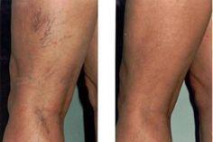 miért nem napozhat visszérrel enyhíti a varikózisos lábak gyulladását