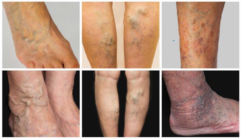 Akut lábfájás visszérrel: tünetek és elsősegély - Fekélyek