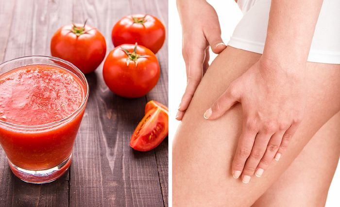 szóda krémek visszér ellen fizikai aktivitás a lábak varikózisával