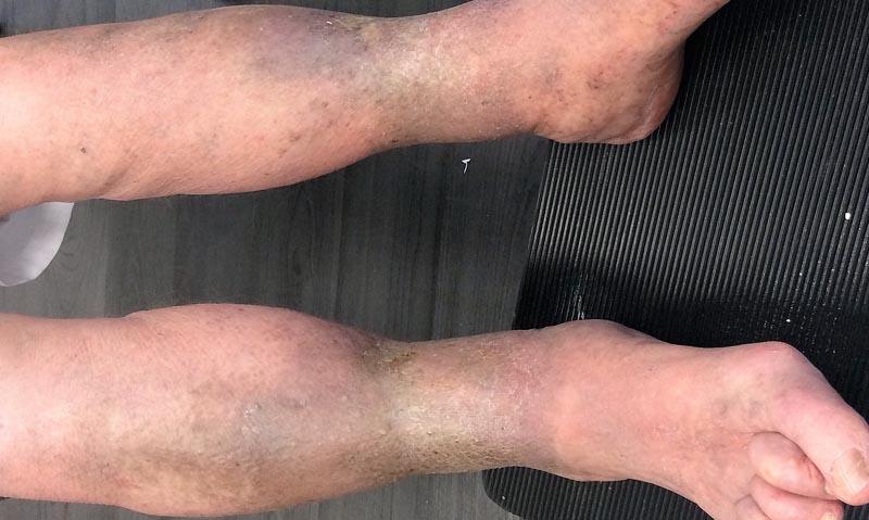 a lába kékre vált a visszérről, mit kell tennie kezelés visszér után