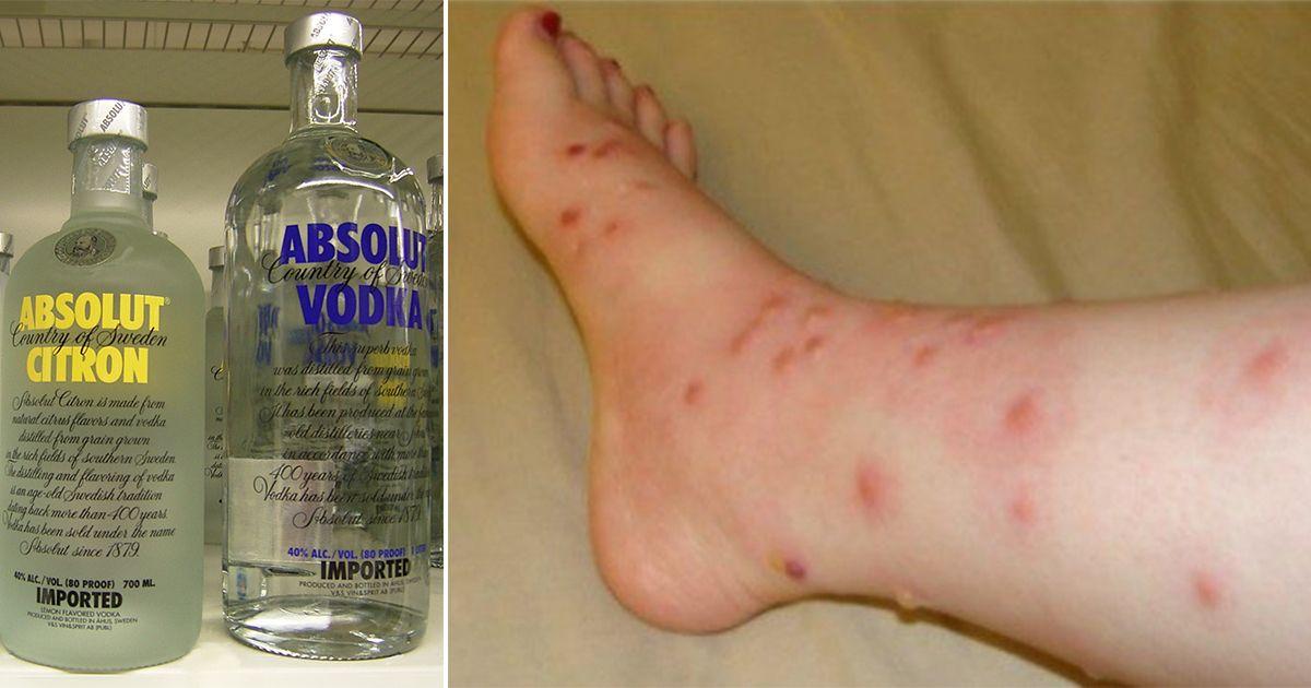 preferenciális gyógyszerek a visszér ellen a visszeres lábak betegségei