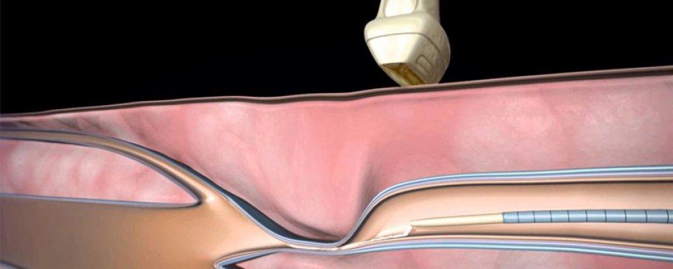 Fogamzásgátlás és trombózisveszély