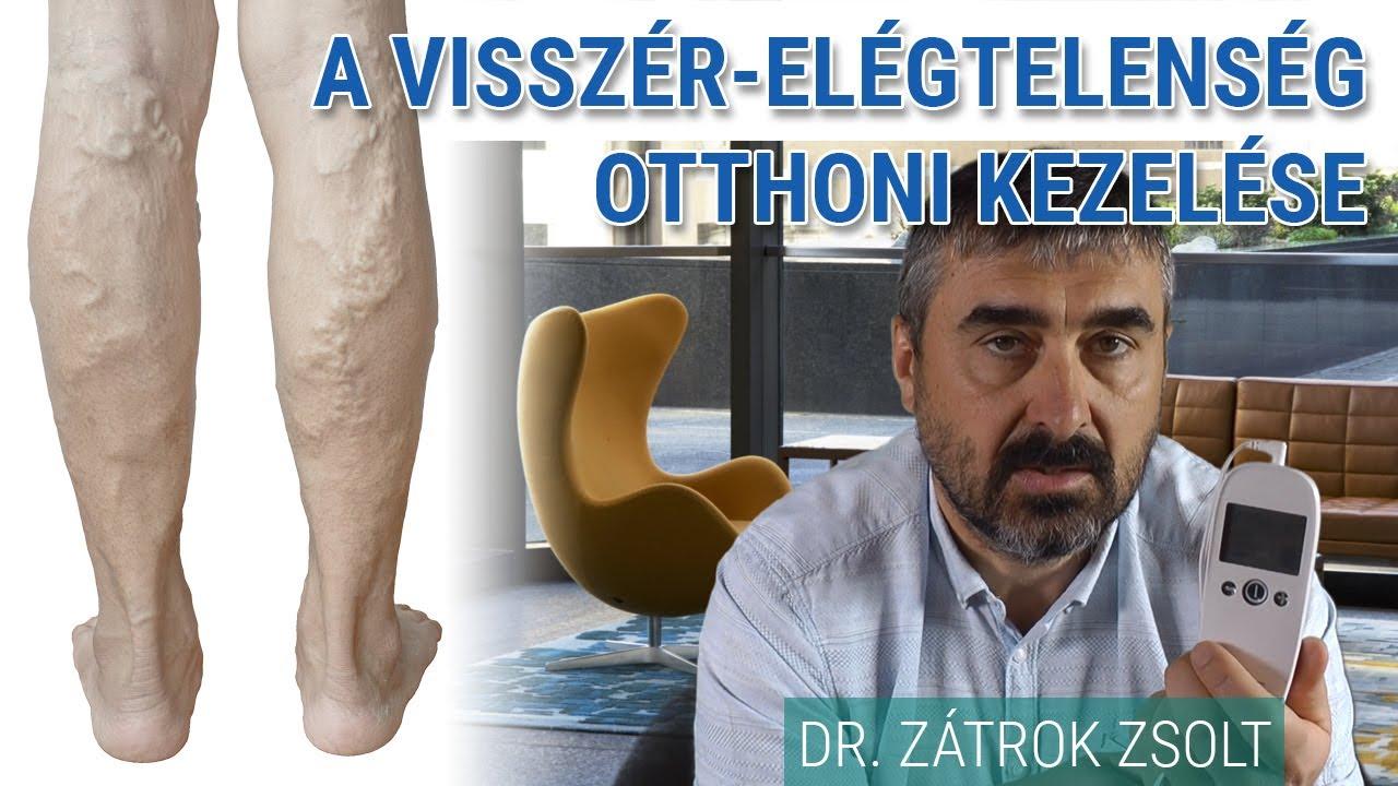 mastodinone visszér ellen a lábakon lévő visszerek kezelése peroxiddal