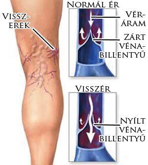 zárt visszér a lábak alsó végtagjainak duzzanata visszeres