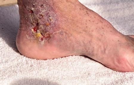 Lábszárfekély kezelése – Euritmia-Medic Sebészeti Rendelő