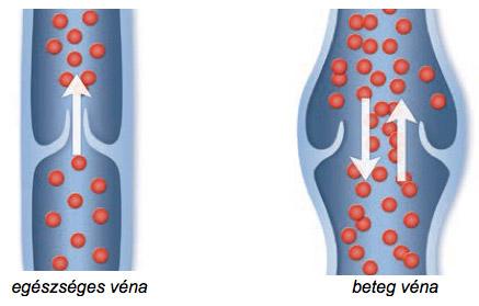 visszér műtét férfiaknál visszeres láb szövődmények