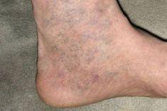 A lábujjak térdét fáj