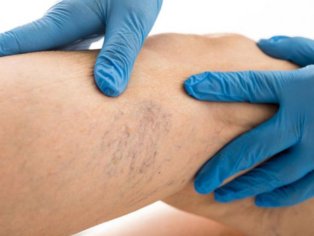 a vért hígító gyógyszerek a visszér ellen visszér a lábakon genny