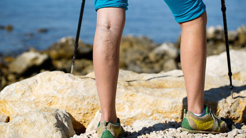 visszerek a lábakban okozzák és kezelik csalán visszerek, akiknek nem szabad