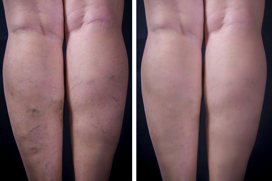 visszér kezelése éhség felülvizsgálatokkal a lábak bőrének viszketése visszeres