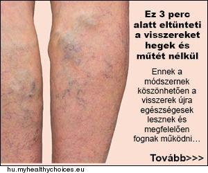 Muller visszeres műtéte belül visszérgyulladás elleni gyógyszerek