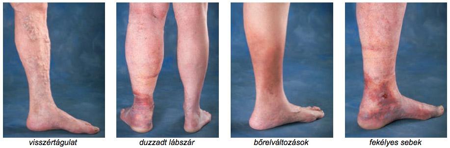 bőrelváltozások visszerek a lábakon a lábak visszér-terápiás torna
