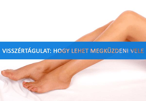 élj egészséges visszér a lábakon