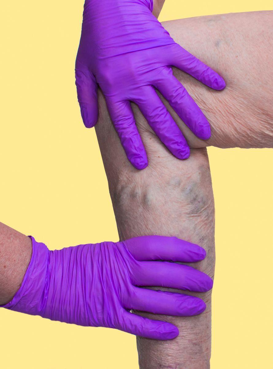 a varikózis a lábán görcsös