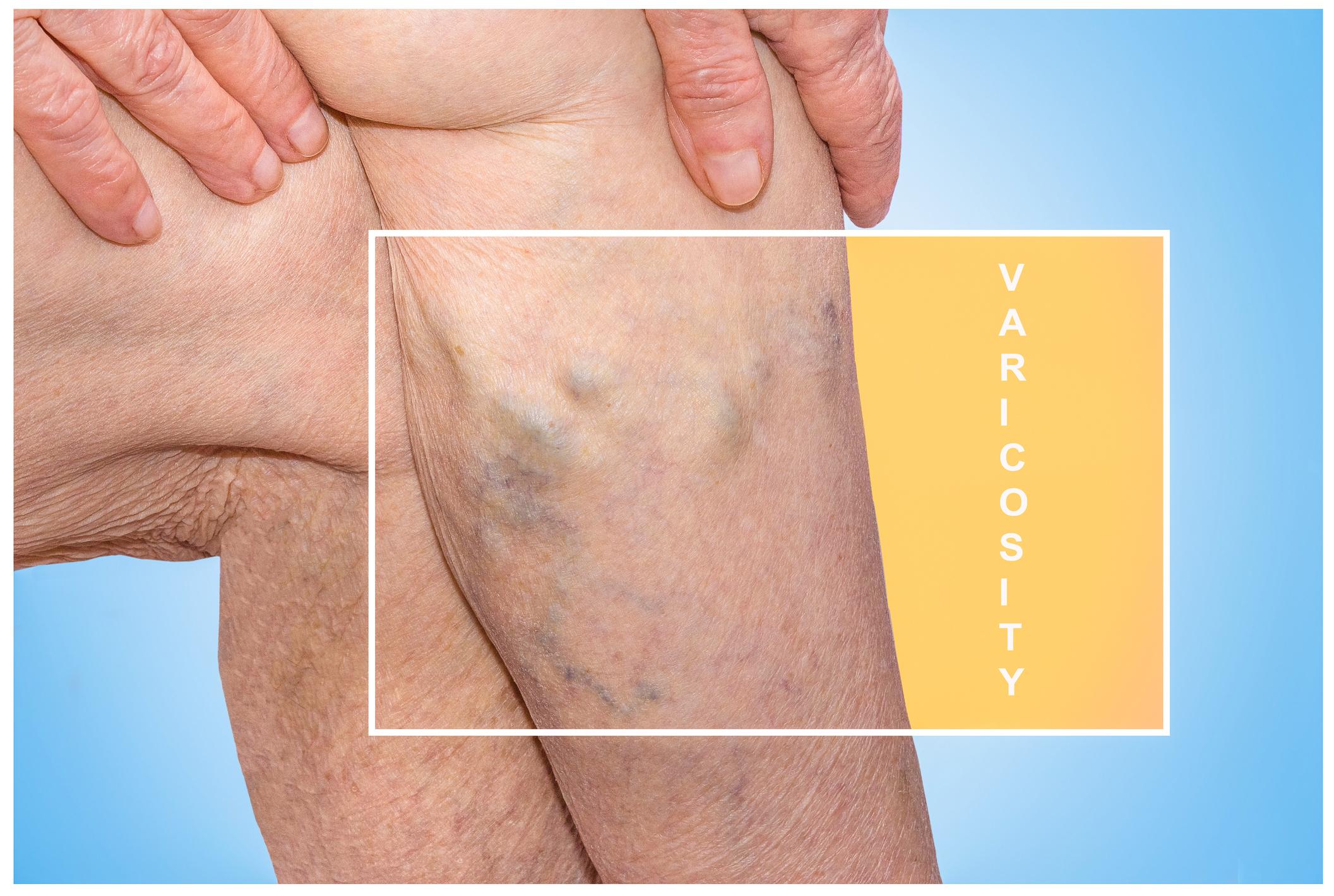 visszér diagnosztikai módszerek pigmentáció a lábon visszérrel