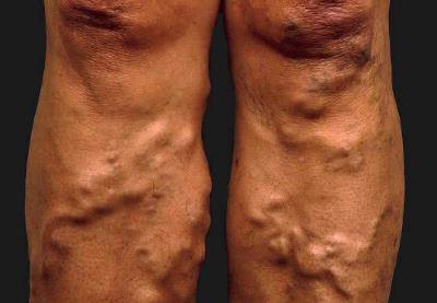 visszértágulatok dudorok kezelésével a lábakon lévő visszerek kezelik vagy sem