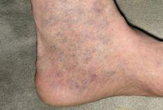 mi a veszélye a lábak varikózisának gél visszér és visszér ellen