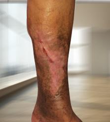 Seprű vénák - Dermatica Bőrgyógyászat és Kozmetika, Bőrsebészet