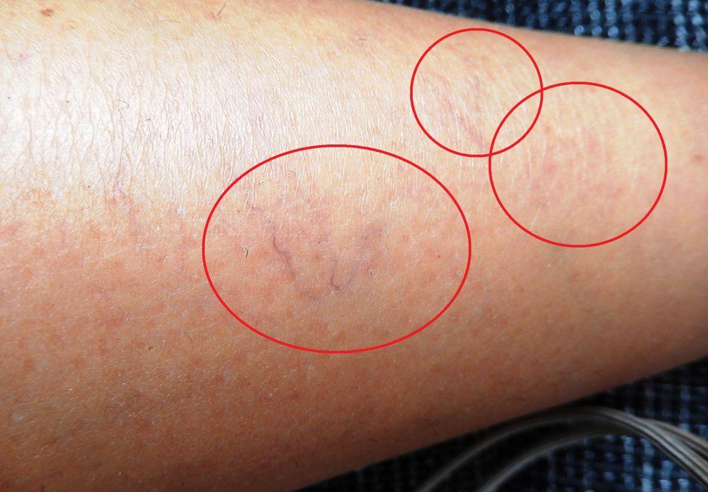 melyik kenőcs a varikózisos lábaknál jobb