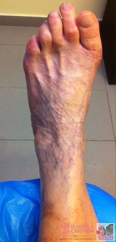 visszér a lábszár kezelésén mi erősödik a visszérrel