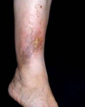 viszkető lábak műtét után visszér visszér a boka kezelésén