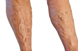 Amit szinte senki nem ismer: így lehet eltüntetni a visszeres lábat örökre - Blikk Rúzs
