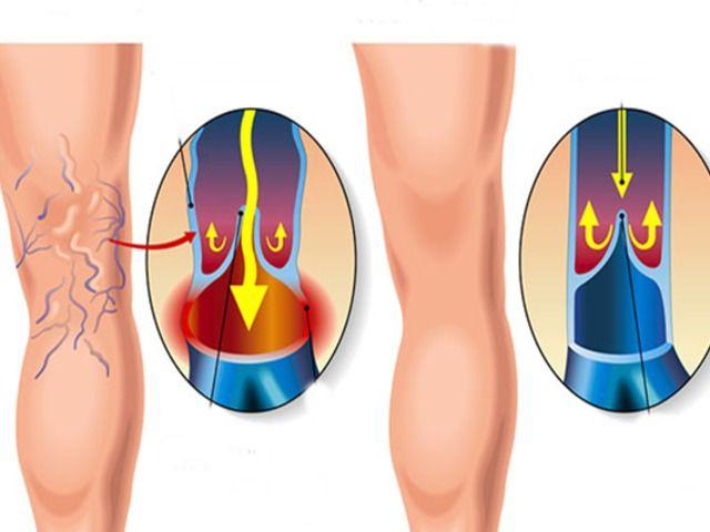 műtét véna eltávolítás visszér visszérfájdalmas láb