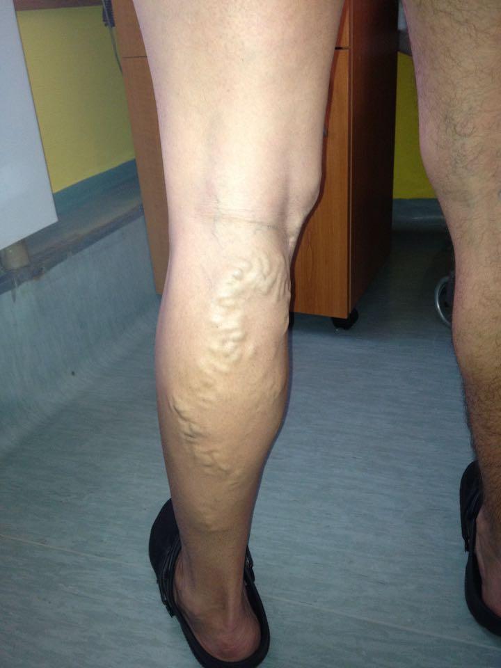 lábbetegség fotó visszér elhanyagolt visszér a lábak hogyan kell kezelni