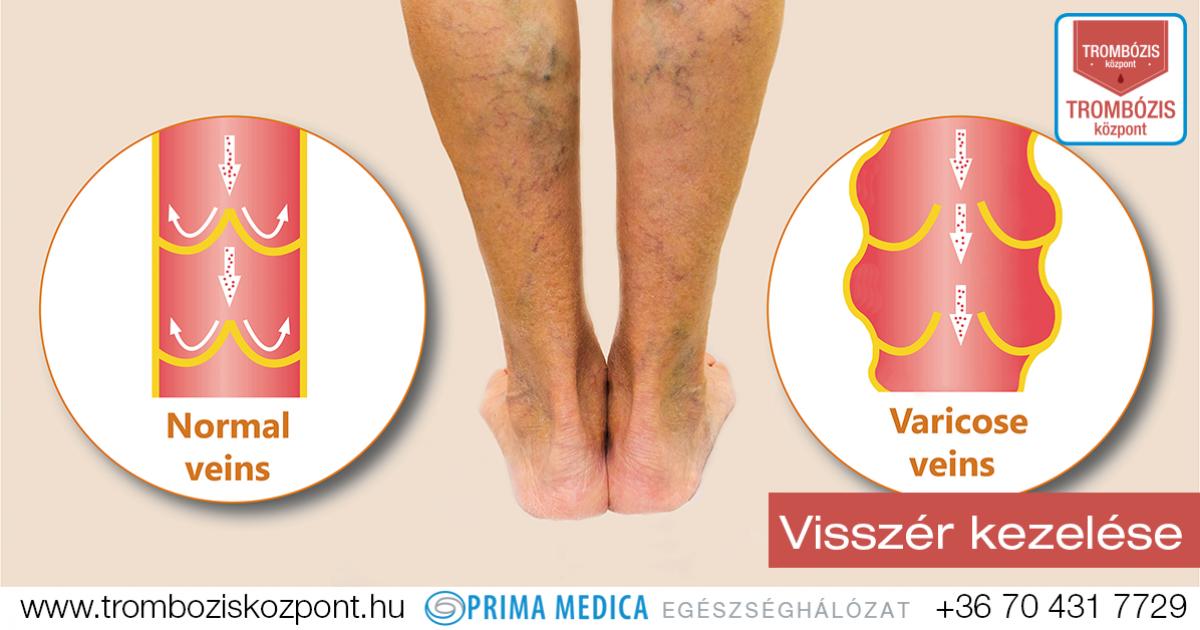 gyógyítható visszér a lábakon