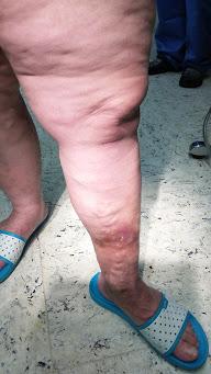visszeres vérrögök jelenléte visszér lábak ember kezelése