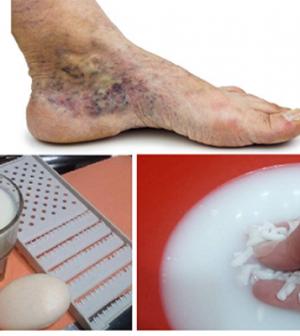 a lábak varikózisának kezelése almaecettel