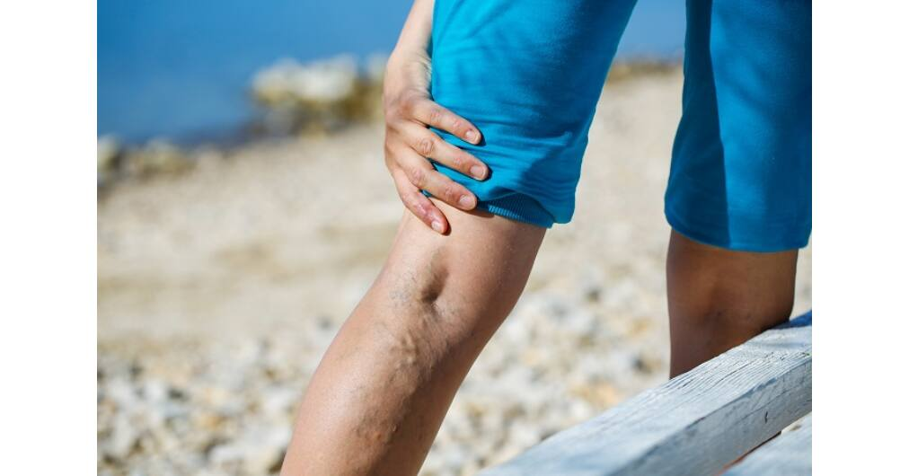 visszér lézer vagy szkleroterápia visszér kezelése ápolásban