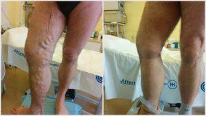 műtét után visszér következmény úszás gyógyítja a visszér