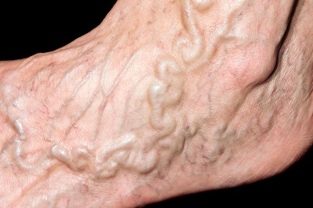 milyen gyakorlatokat végezhetünk a visszér ellen visszerek kezelése a lábakon népi gyógymódok