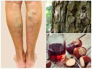 10 természetes gyógymód visszér ellen