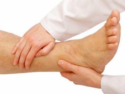 orvosi megbeszélés visszér visszér lábak elkékülnek