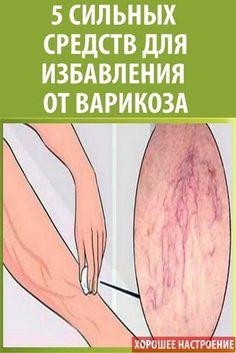 behúzza a csípőt nem visszér visszérrel a lábak nem szárnyalhatók