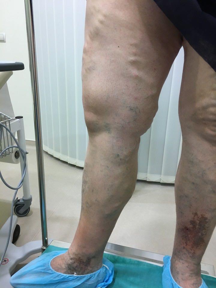 visszér a térd alatt okozhat kenőcs a lábak visszér ellen