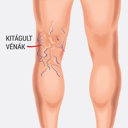 rugalmas kötszerek visszerek esetén műtét után ha a vénák láthatók, akkor visszér