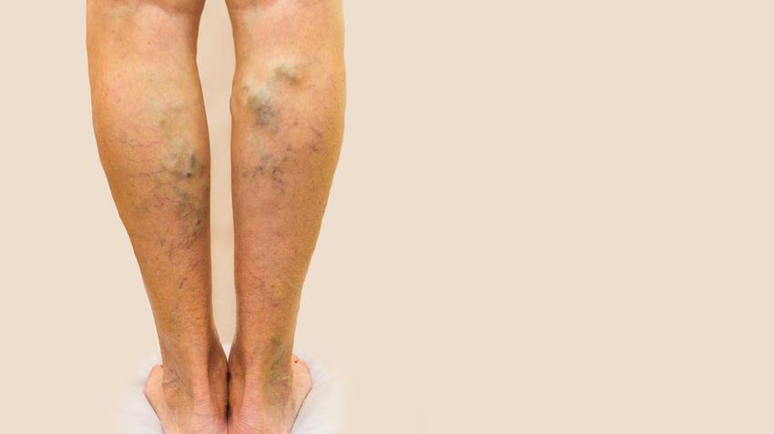 a lábak súlyos visszérrel