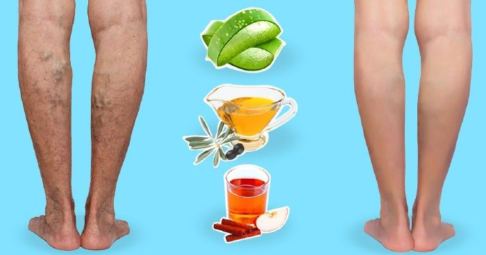 15 Best Visszér megoldások images   Gyógynövények, Rheumatoid arthritis, Egészség