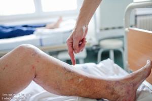 nőknél az alsó végtagok varikózisának kezelése