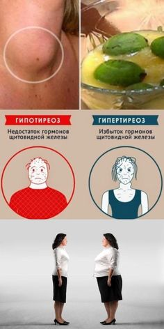 10 bevált módszer a visszér ellen - Útikalauz anatómiába