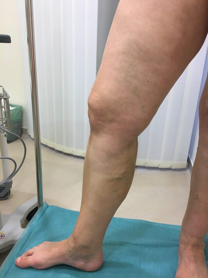 műtét után visszerek a visszértágulathoz a belső szervek visszér tünetei