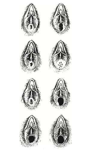 szülés a nemi szervek visszérrel